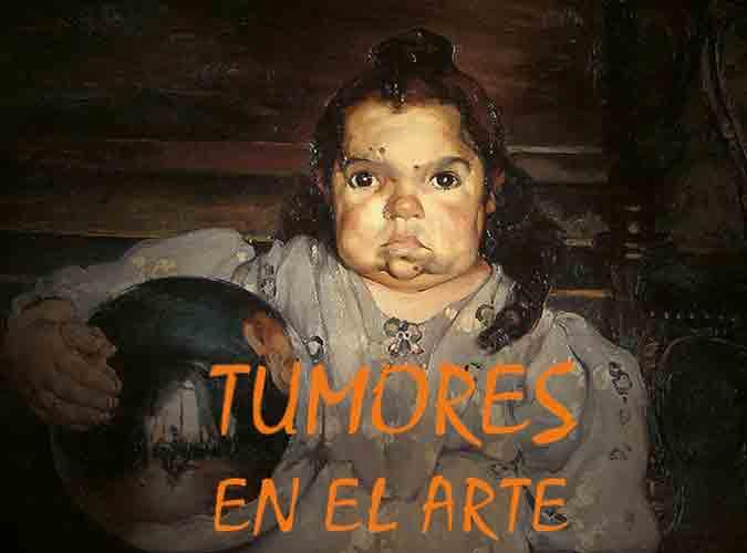 Tumores en el Arte