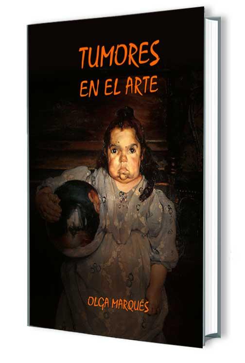 Marqués, Olga. Tumores en el arte. Ed 2014.