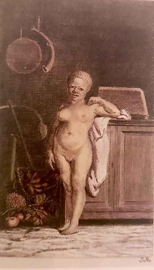 Negra albina. Medicina, Piel y Arte. Olga Marqués