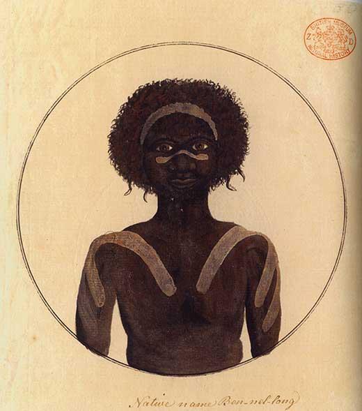 Bennelong. Lamina ilustrada. Medicina Piel y Arte. Una sección de Olga Marques